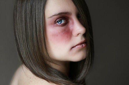 que es violencia de genero sintomas fisicos