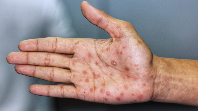 enfermedades de transmision sexual sifilis